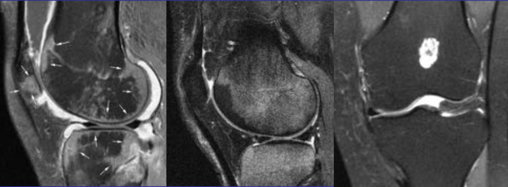 Отек костного мозга коленного сустава упражнения для развития подвижности плечевых суставов спортсменов