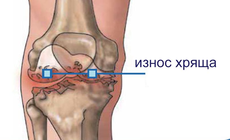 Истончение хрящевого сустава препараты для суставов и хрящей с коллагеном
