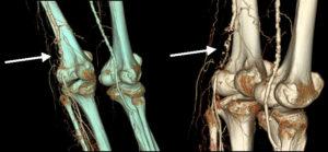 Воспаление кости коленного сустава