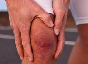 Как понять что у человека рак колена или тазобедренного сустава