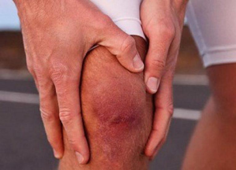 Доброкачественная опухоль суставов лечение артроза плечевых суставов