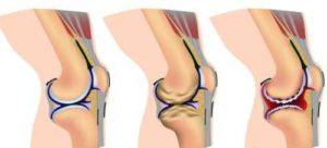 Изображение - Туберкулез коленного сустава симптомы bolit_levaya_noga_pod_kolenom_szadi_i_ikra_nizhe_7-300x136