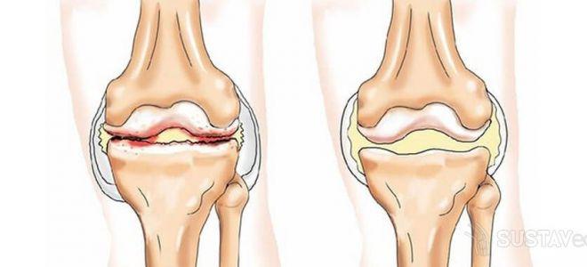 Лечение народными способами отложения солей в коленном суставе эластичная повязка, фиксирующая коленный сустав