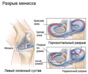Изображение - Имплант мениска коленного сустава imga38o7-14-300x252