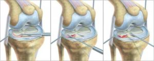 Изображение - Имплант мениска коленного сустава imgpc9je-6-300x120