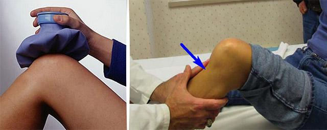 Диагностика лечение и профилактика эпикондилита коленного сустава