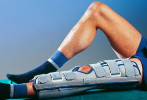 Боль в колене после перелома надколенника