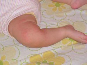 Опрелости под коленками у ребенка грудничка: симптомы и стадии развития