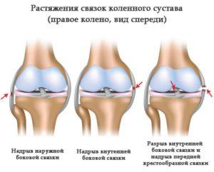 Диагностика растяжения подколенного сухожилия симптомы и лечение