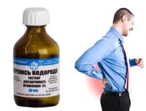 Лечение суставов перекисью водорода