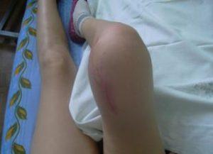 Изображение - Рак коленного сустава как выглядит osteosarkoma-2-300x217
