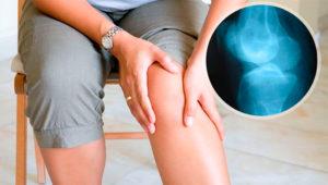 Болит колено и кожа вокруг него