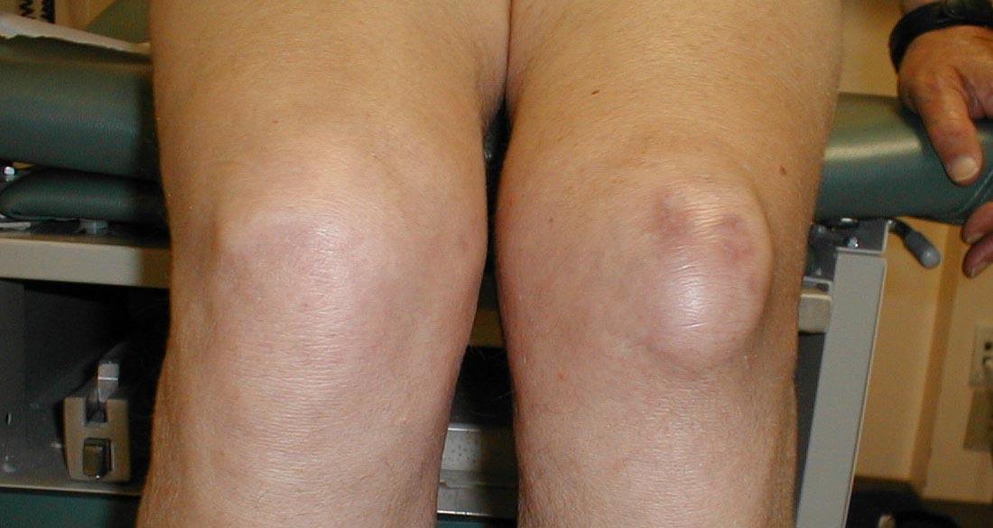 На колене появилась мягкая шишка