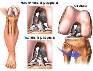Изображение - Травма коленного сустава код по мкб 10 rastyazheniesvyazokkolennogosustavasimpt_235566C1-1-300x230