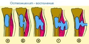 Остеомиелит коленного сустава лечение - Лечение Суставов
