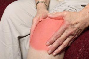 Изображение - Тотальная синовэктомия коленного сустава последствия sinovit2-300x200