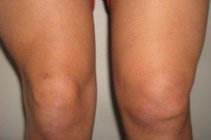 Изображение - Тотальная синовэктомия коленного сустава последствия sinovitkolennogosustavapriznakisimptomii_FF53C876-300x199