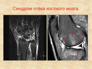Изображение - Контузия костного мозга коленного сустава slide-10-300x225