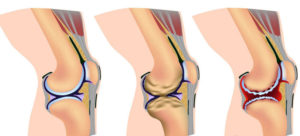 Остеосклероз что это такое лечение позвоночника коленных и тазобедренных суставов подвздошной кости