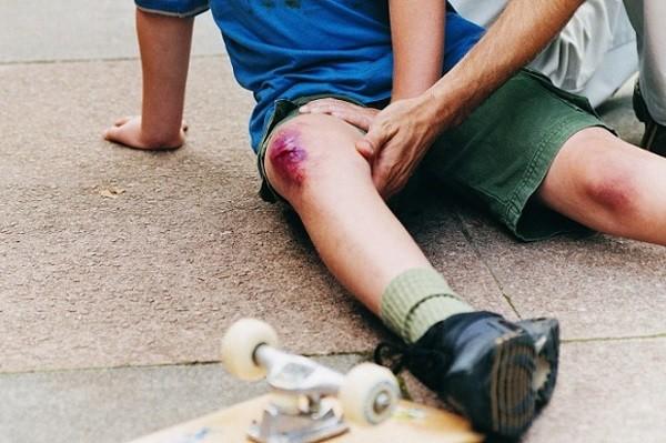 Как обработать раны на коленях. Сколько заживает рана на колене