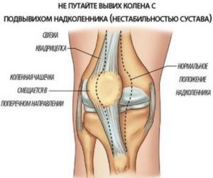 Берут ли в армию с повреждением связок коленного сустава