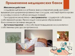 Изображение - Лечение артроза коленного сустава вакуумными банками 014-300x225