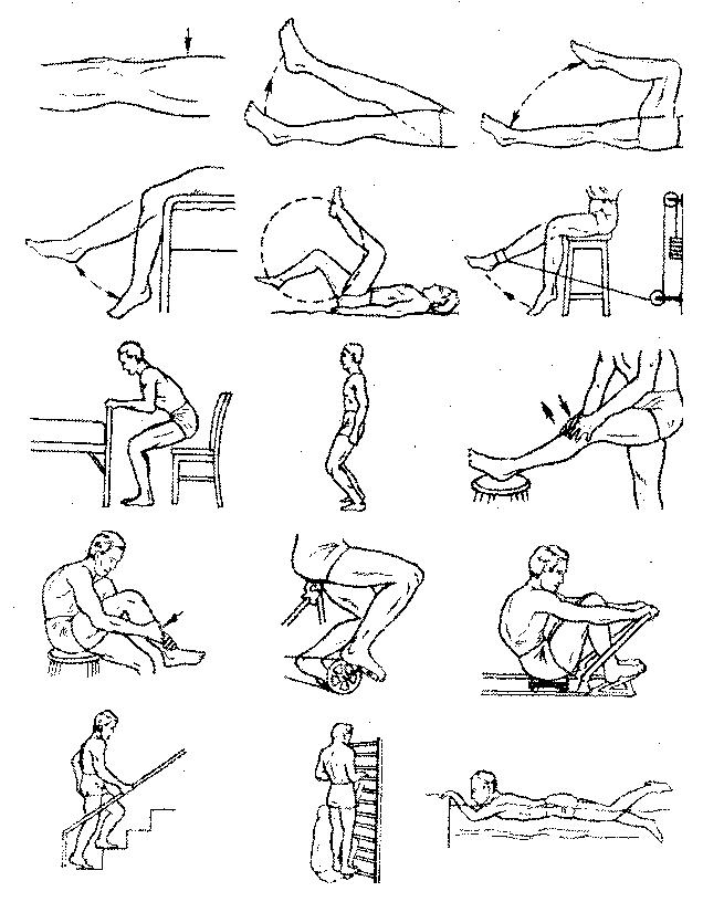 Лечебная физическая культура при повреждениях коленного сустава лечение опухли коленного сустава