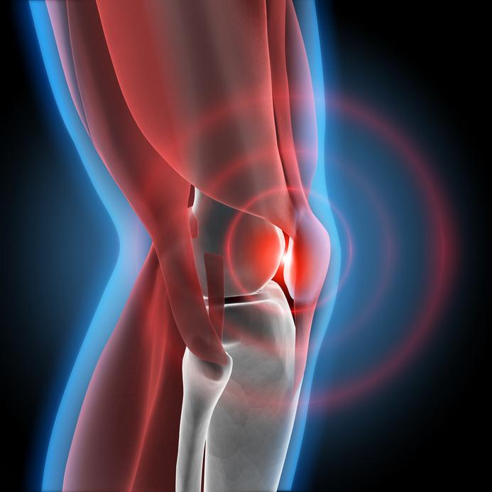 Невралгия коленного сустава перелом плечевого сустава без смещения лечение