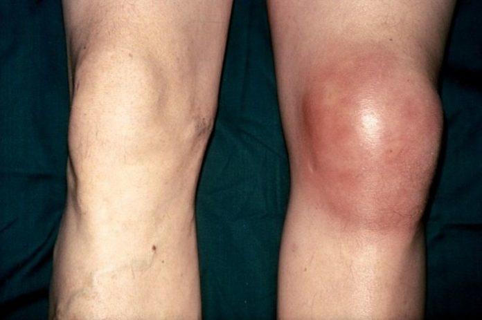 Гемотома коленного сустава искусственный сустав из керамики купить