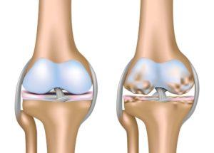 Гонартроз коленного сустава 3-4 степени: перспективы больного