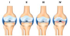 Диагноз полиостеоартроз с преимущественным поражением коленных суставов