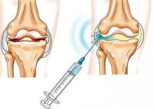 Изображение - Кислородные уколы для суставов Genialnaya-prostota-metoda-300x212