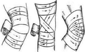 Как правильно бинтовать колено обычным бинтом. Как наматывать эластичный бинт на колено? Когда накладывать эластичный бинт?