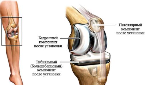 Современные методы протезирования коленного сустава питание костях и суставах причины