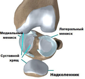 Изображение - Дискоидный мениск коленного сустава anatomija-meniska-1-300x278