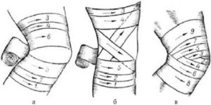 Изображение - Повязка при повреждении коленного сустава cherepashya-povyazka-na-koleno-300x149