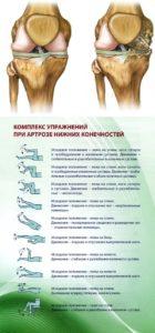 Лечебная гимнастика при артрозе коленного сустава по евдокименко