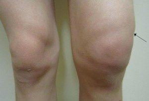 Опухло колено чем снять отек