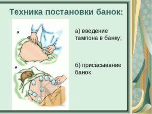 Изображение - Лечение артроза коленного сустава вакуумными банками img7-300x225