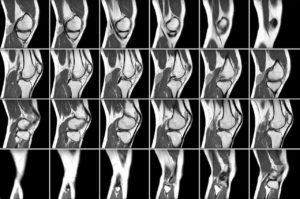 Изображение - Неврит коленного сустава симптомы kompyuternaya-tomografiya-300x199