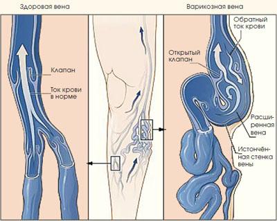 Ангиома коленного сустава коллаген для укрепления суставов в донецке