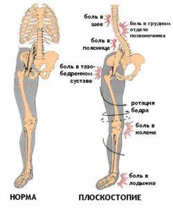 Коленный сустав и плоскостопие thumbnail
