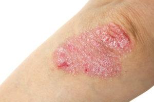 Красное круглое пятно на ноге не чешется — Импульс здоровья