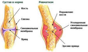 Специфика возникновения и лечения ревматизма коленных суставов