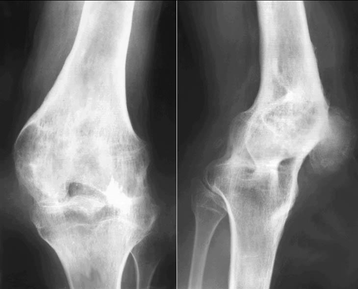 Что такое анкилоз коленного сустава хаш мазь от суставов