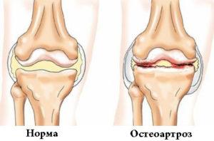 Болит правое колено синельников