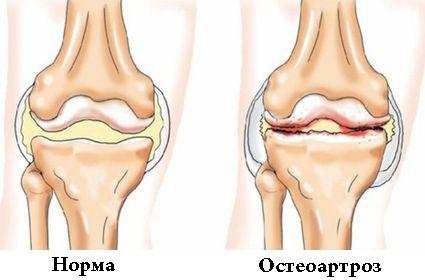 Метафизика боли в коленном суставе задержка развития тазобедренных суставов у новорожденных