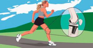 Во время занятий спортом болят колени