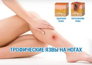 Рожа коленного сустава симптомы и лечение