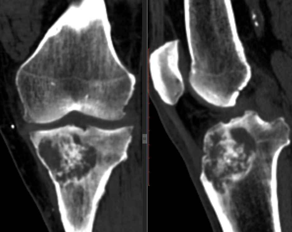 Компьютерная томография коленного сустава - КТ колена